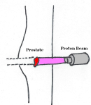 ProtonBeam_1