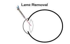Lens Removal