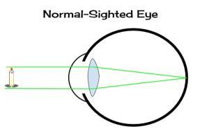 normalsight